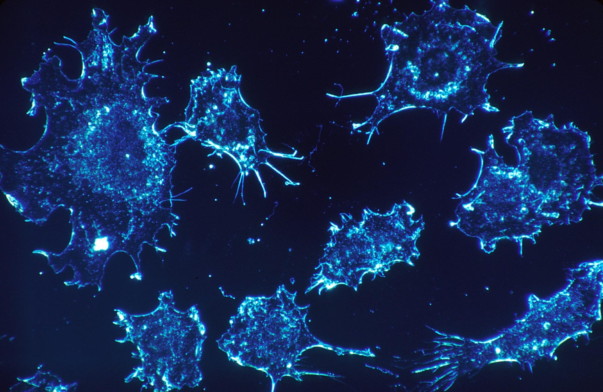 がんの術後死亡率は、手術症例数の多い病院では半分以下に
