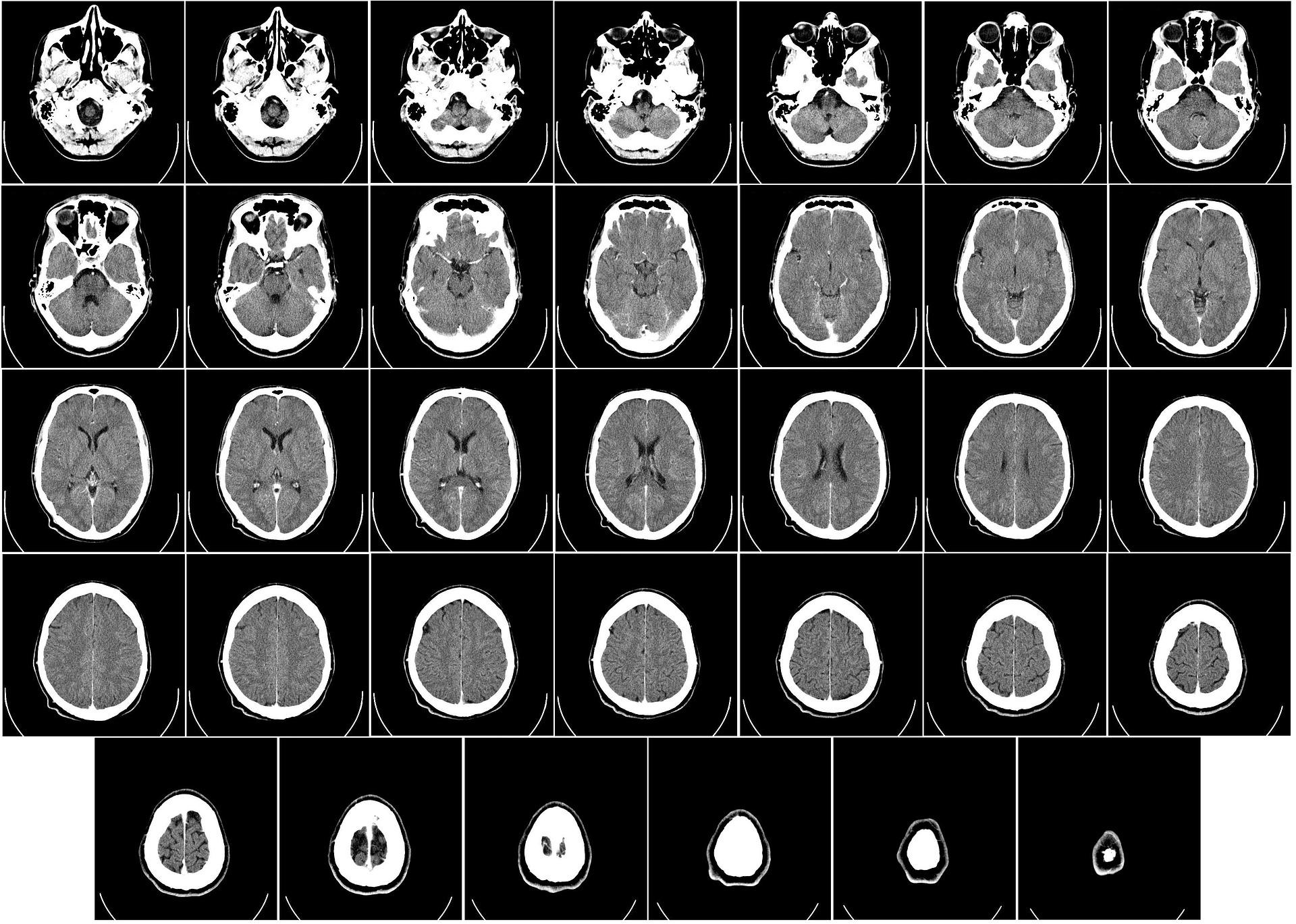 名医が悪性脳腫瘍手術を行うと、死亡率が半分以下に!