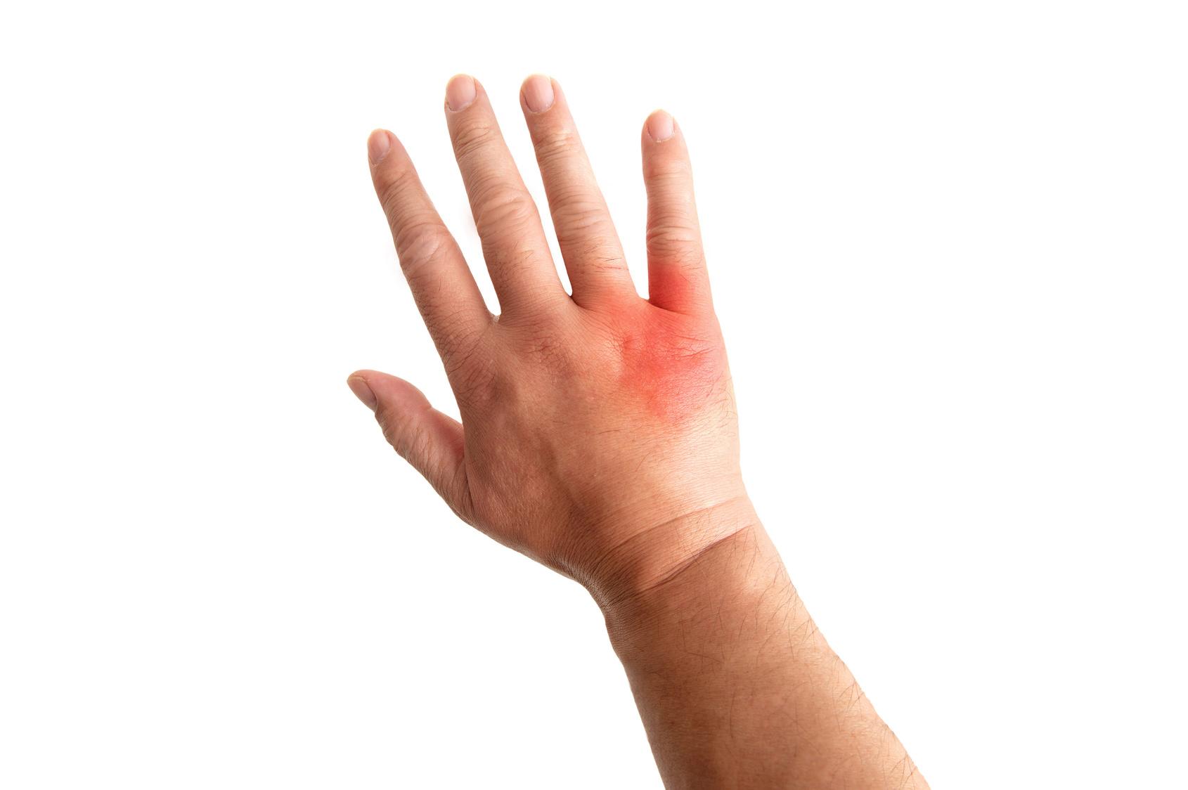 アトピー性皮膚炎の治療で大切な3つのポイント