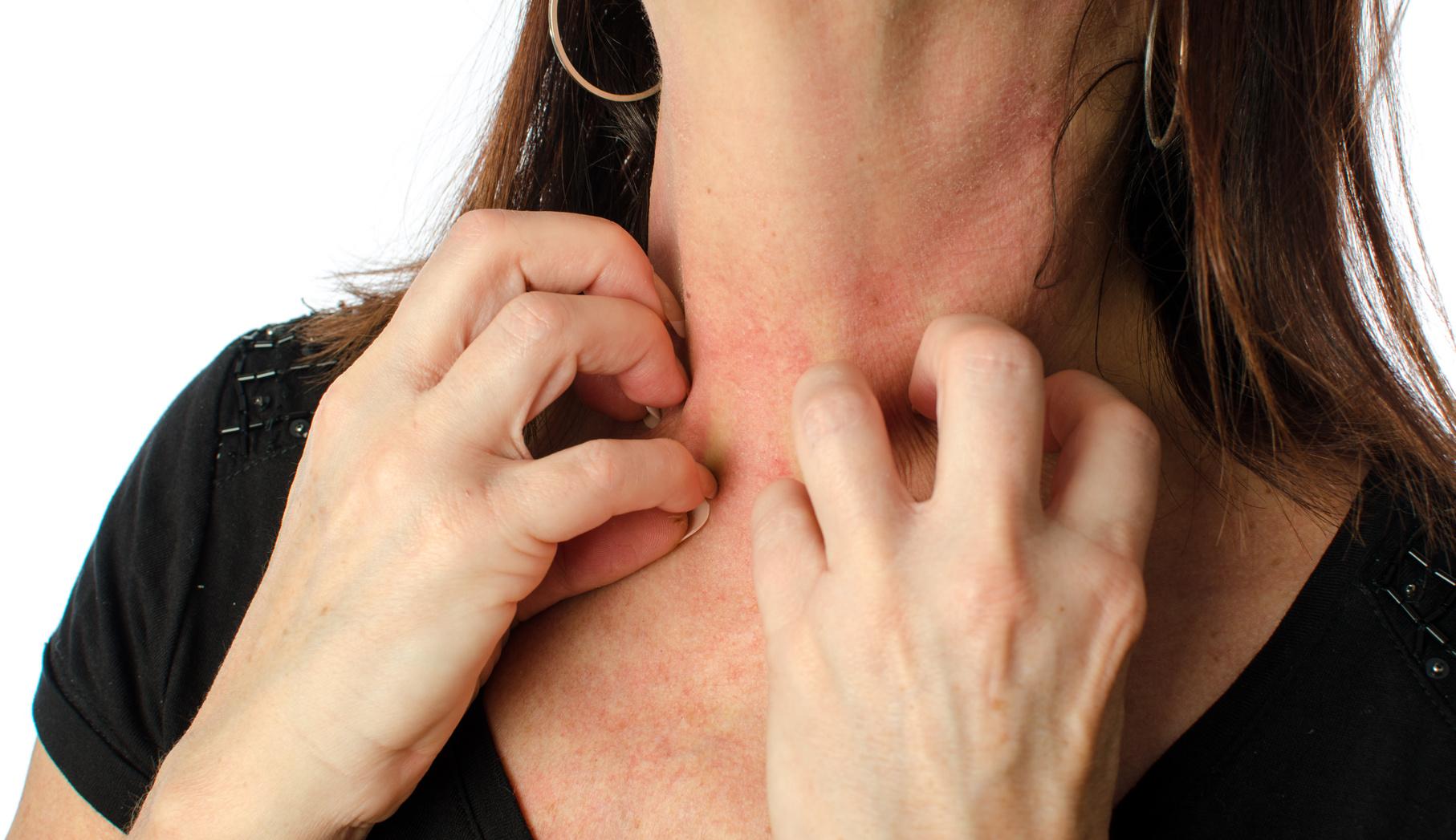 乾燥肌、かゆみ、に悩まされるアトピー性皮膚炎