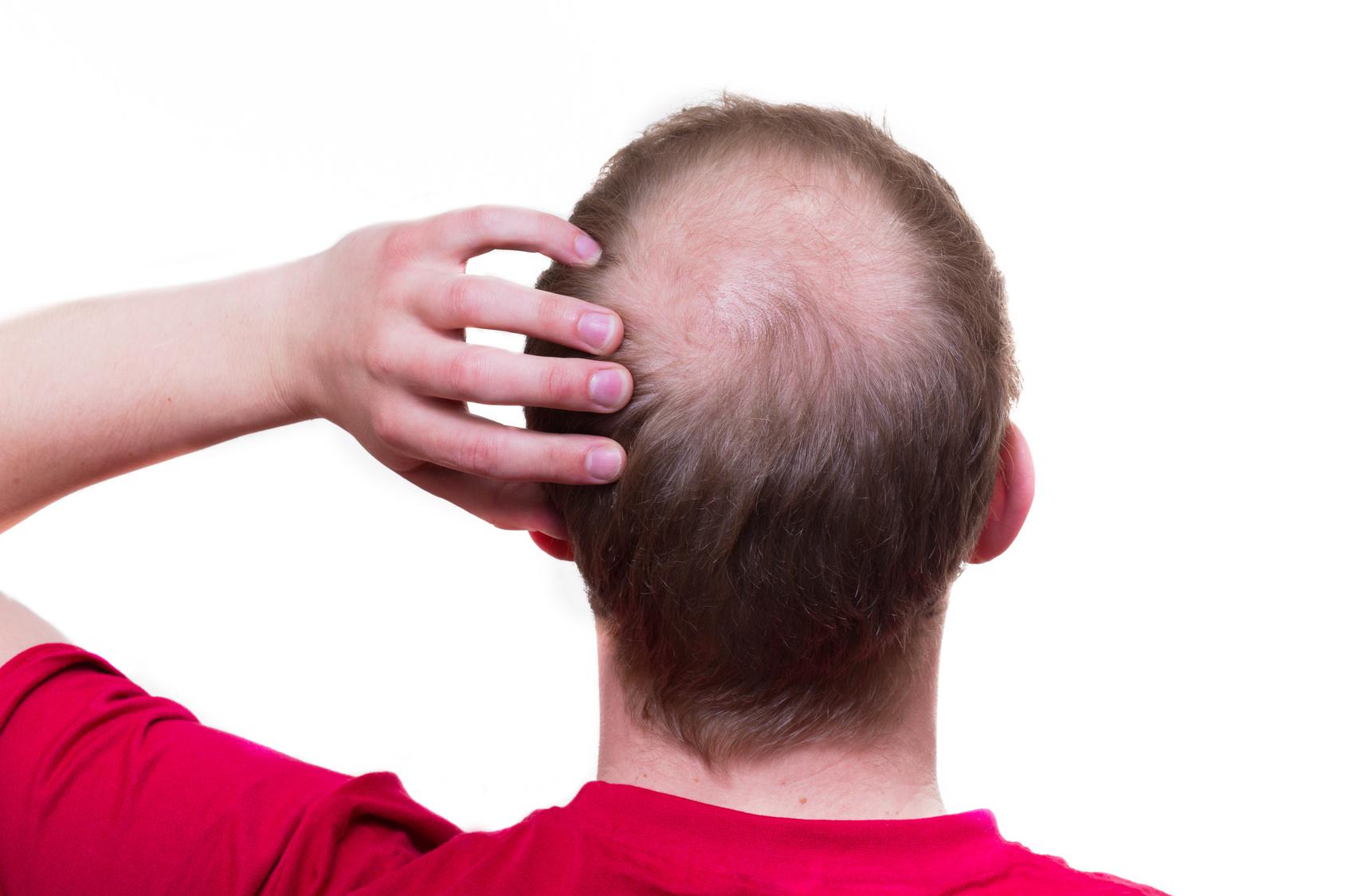 円形脱毛症の原因はストレスではない!?