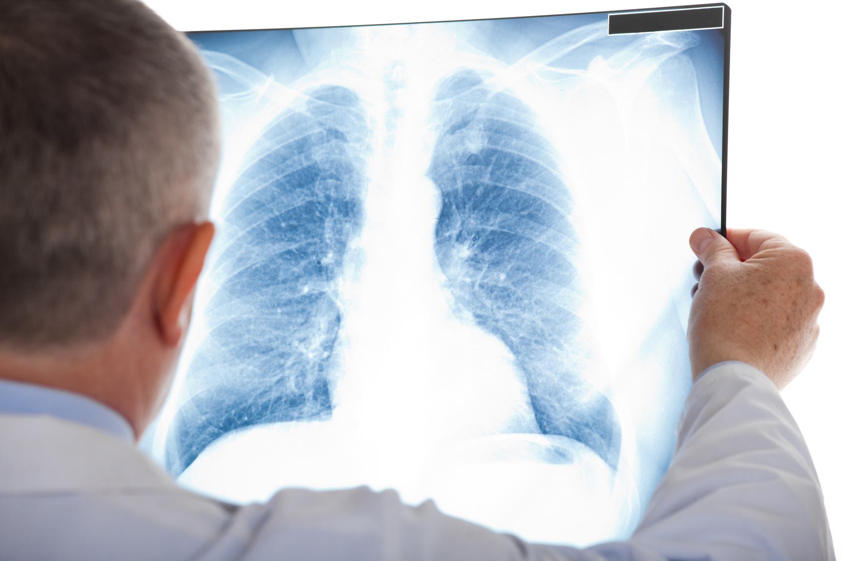 肺が徐々に硬くなってしまう病気、間質性肺炎は普通の肺炎と何が違うの?
