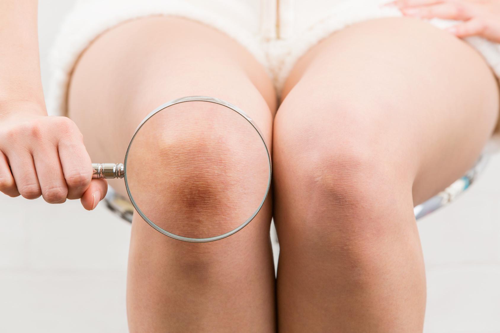 膝半月板損傷 整形外科
