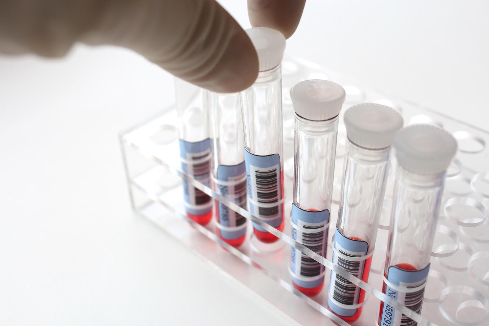 血液検査を受けて腫瘍マーカーのCEAが異常値だったら「がん」の疑い!?
