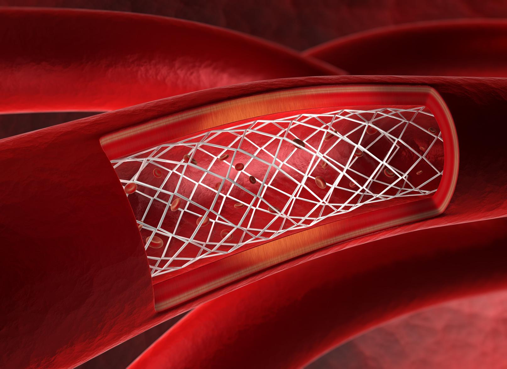 腹部大動脈瘤 ステントグラフト 心臓血管外科