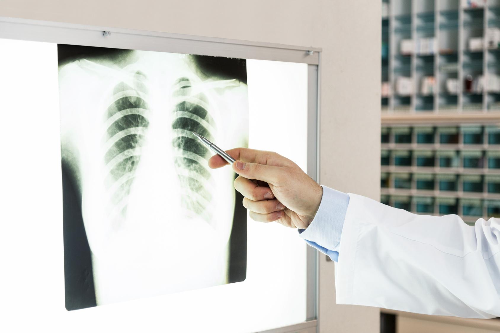 胸部レントゲン検査(胸部X線検査)で異常な影がみられた時は….