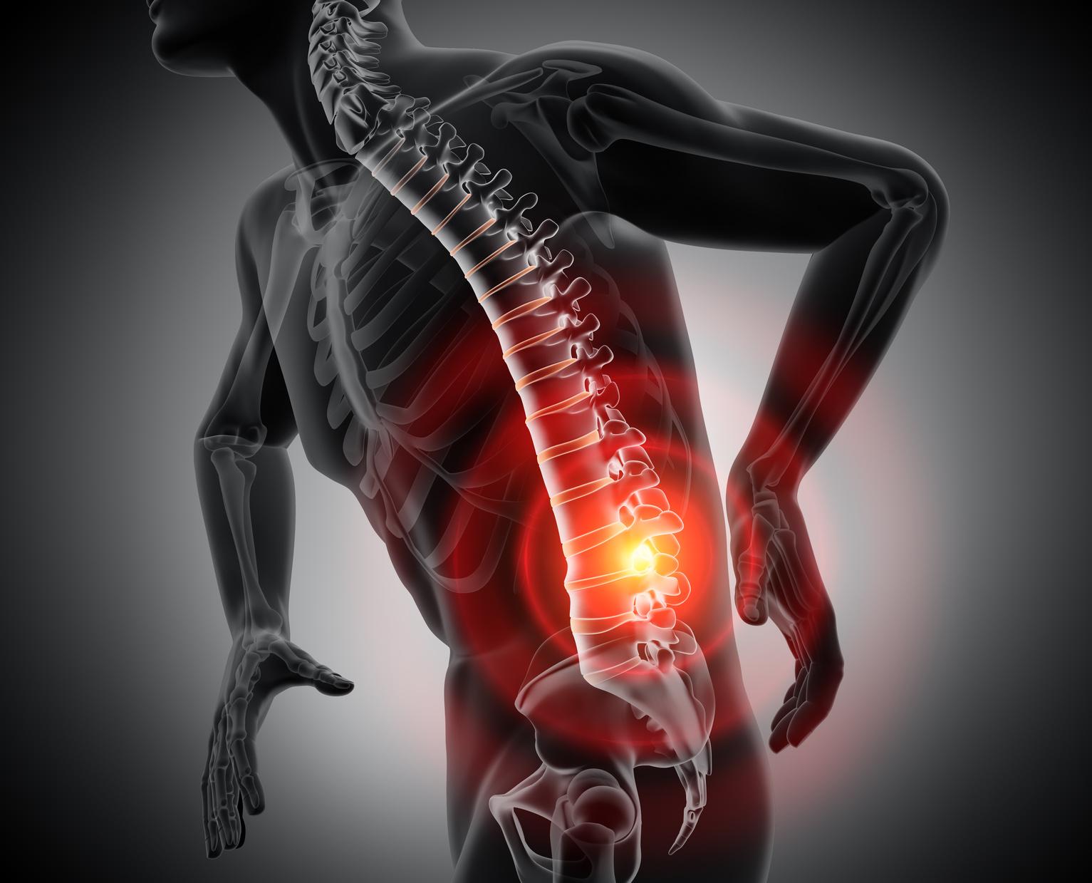 歩くと足がしびれて痛くなってくる…それ、脊柱菅狭窄症かも…