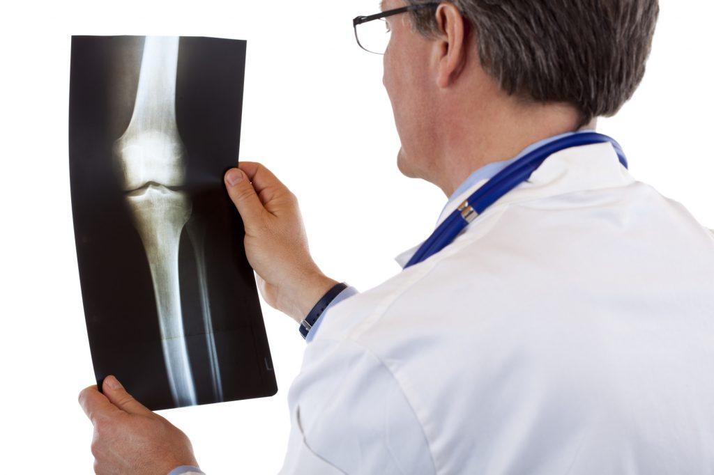 膝 痛い 検査