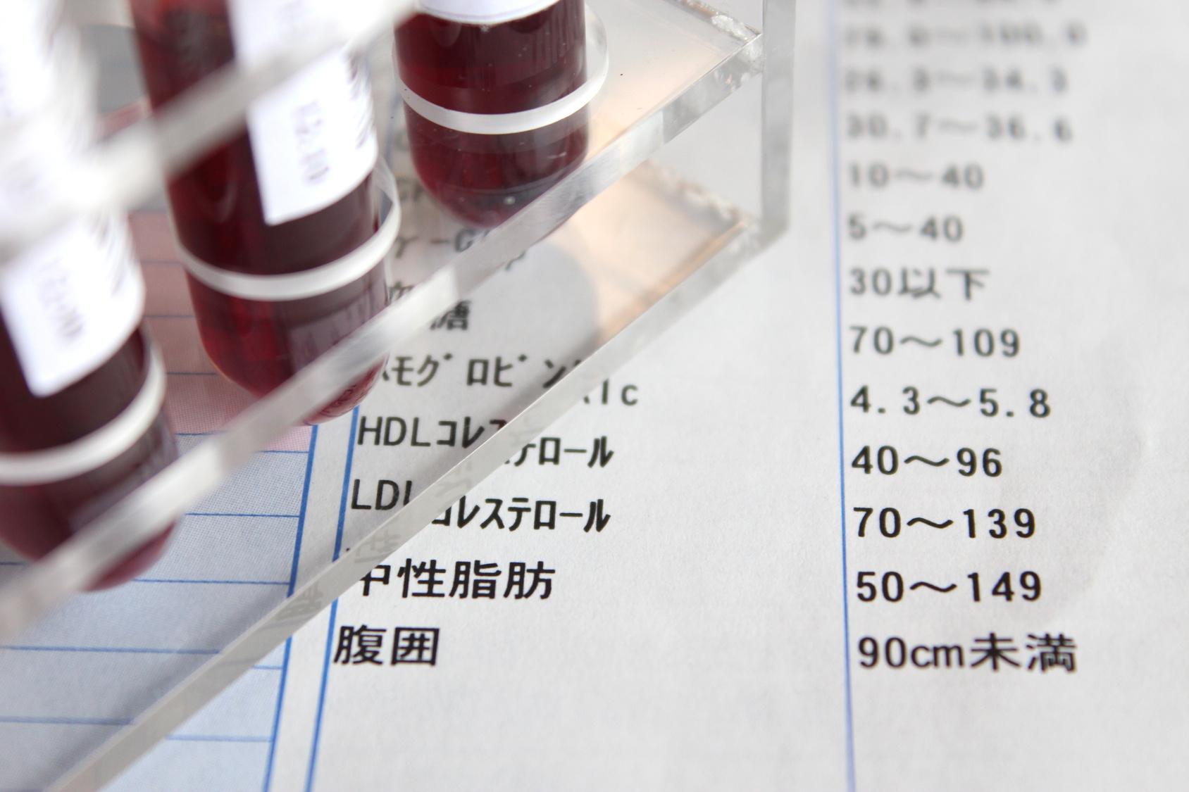 血液検査でHDLコレステロール(善玉コレステロール)が低いと良いの?悪いの?