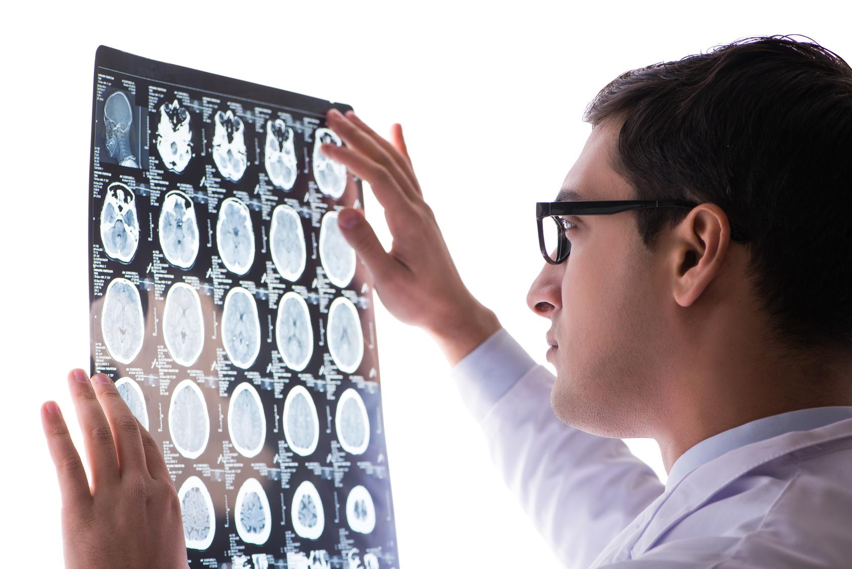 脳腫瘍手術は手術件数の多い名医の方が死亡率が低い