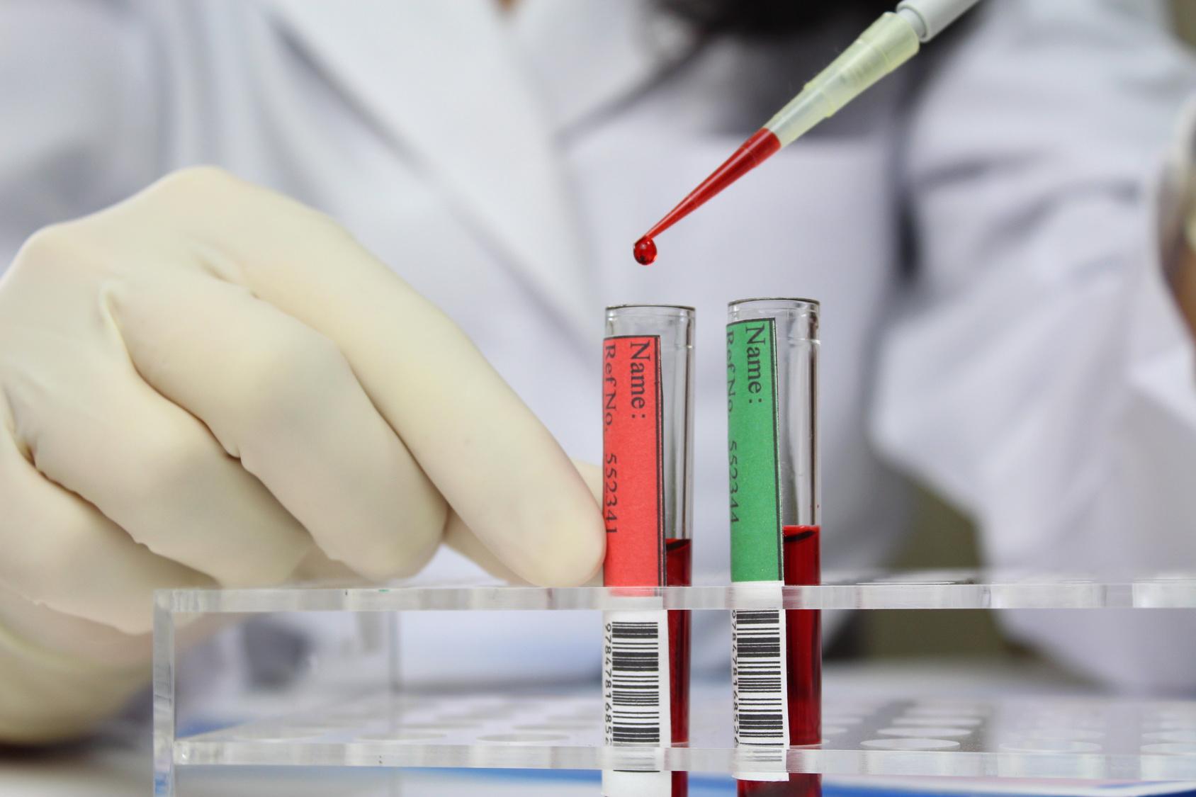 【米国論文】慢性リンパ性白血病の治療については、専門医の治療の方が生存年数が長くなる!