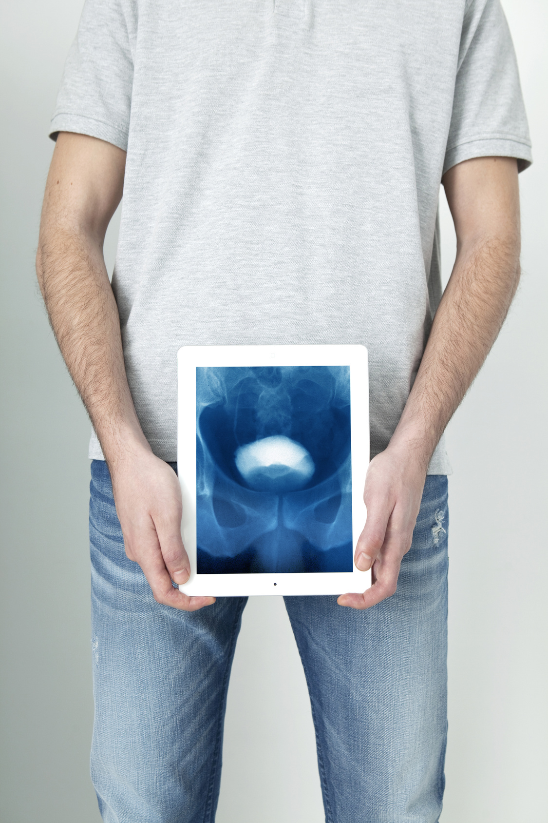 膀胱全摘出術を年間45症例以上執刀する医師は、手術リスク管理が上手な名医!